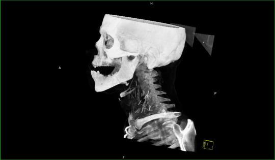 Horrifying x-ray