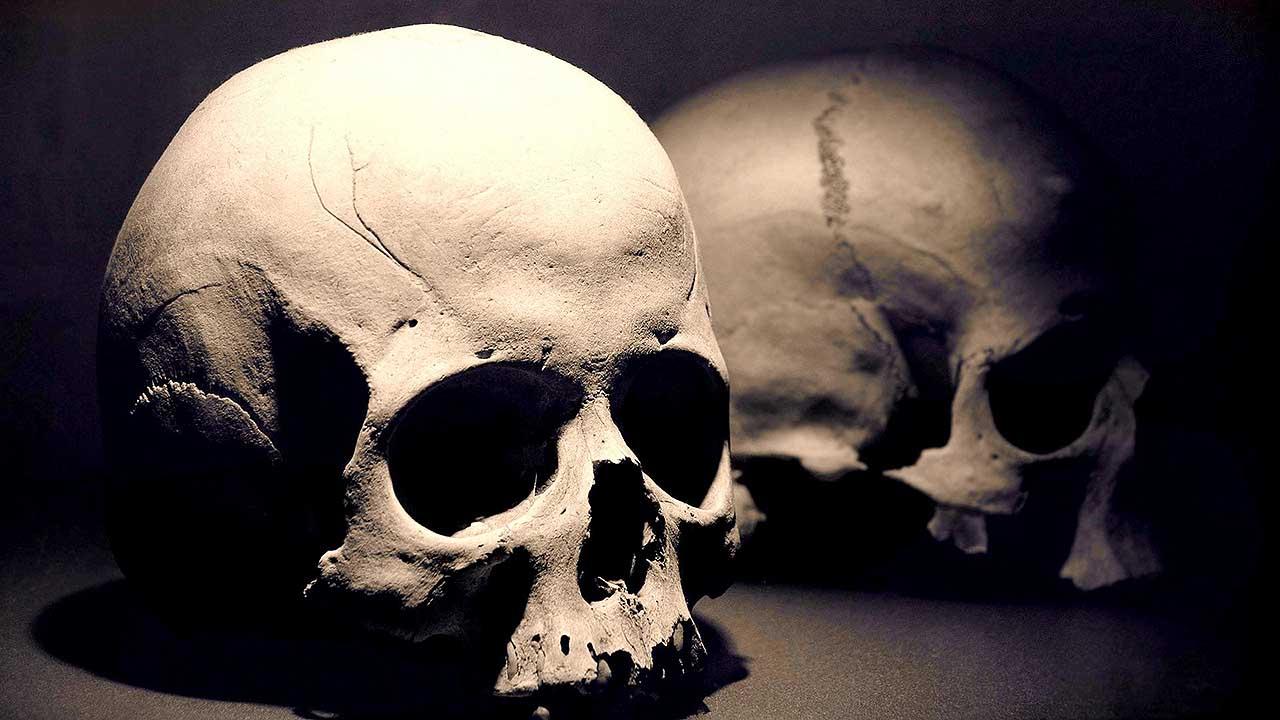 Joe Metheny, Skull