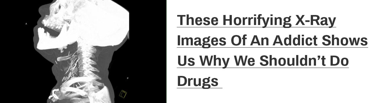X-ray, Drugs, Addict, Cocaine
