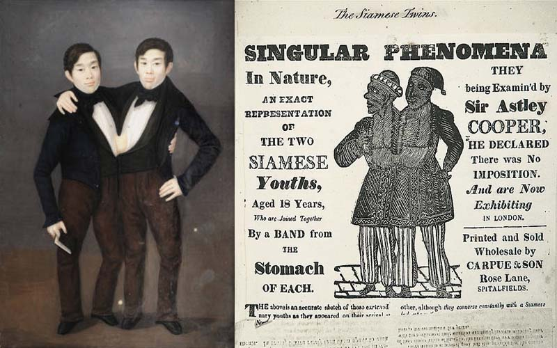 Chang and Eng Bunker, Siamese Twins