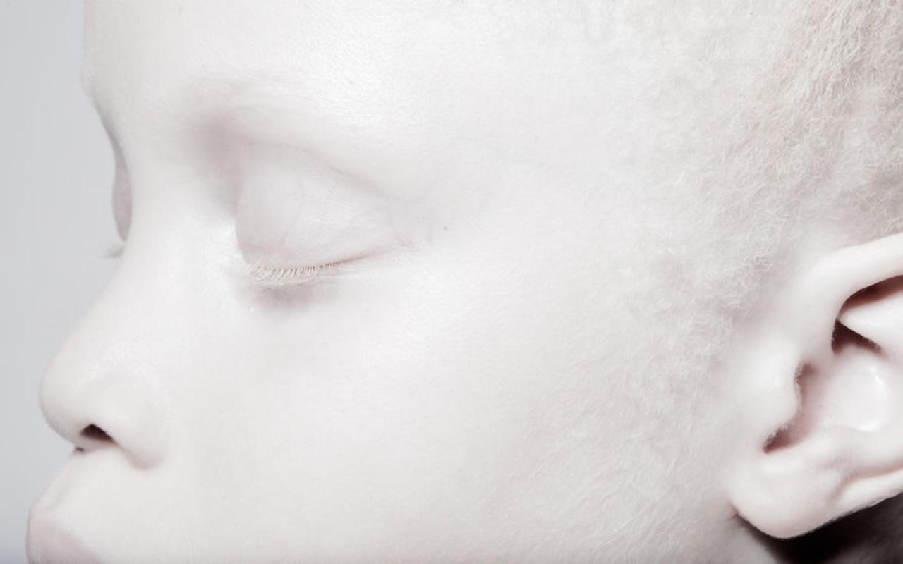 Albino twins, rare flowers