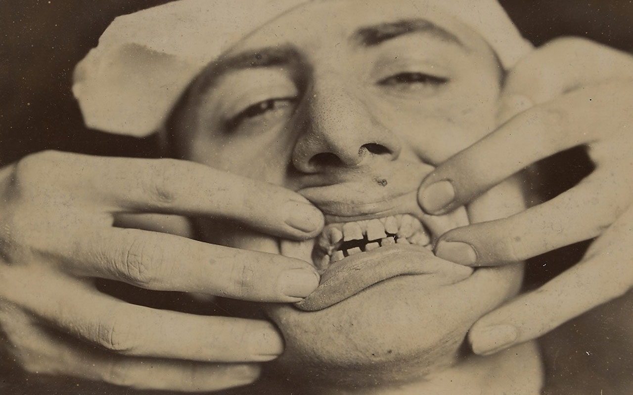 Wellcome Images, dentist, dentistry, medical, fact, facts