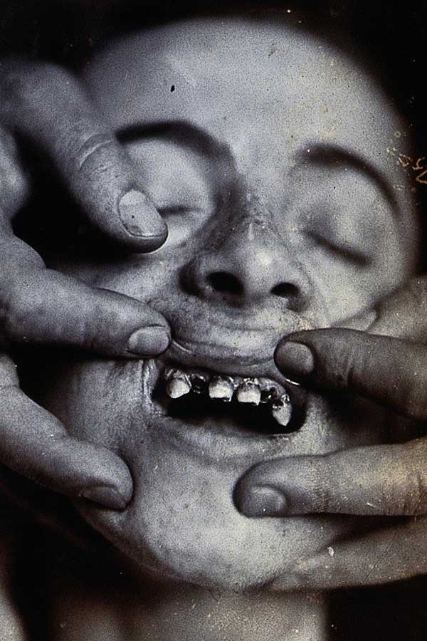 A young child with rotten teeth at Friern Hospital in London. 1890.