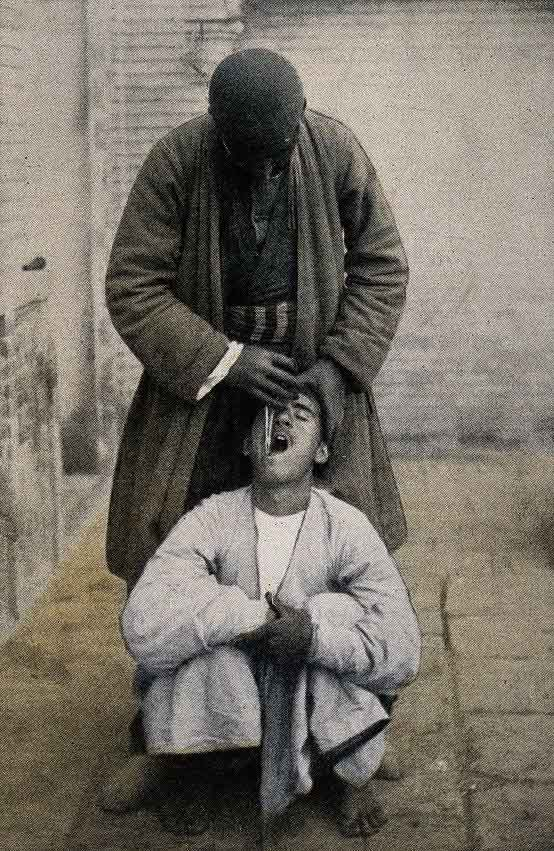 A Persian dentist extracts a tooth from a squatting patient.