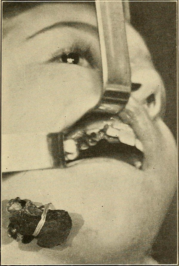 Image from a textbook showing dental treatment of a girl with hereditary syphilis. 1910.