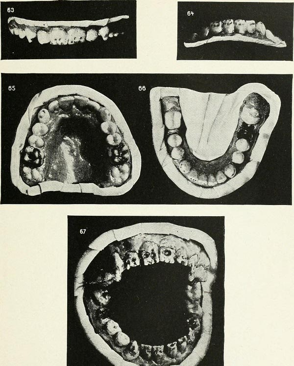 The teeth of a 12-year-old boy with hereditary syphilis. 1912.