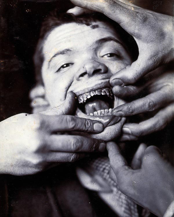 rotten teeth at Friern Hospital in London. 1890.