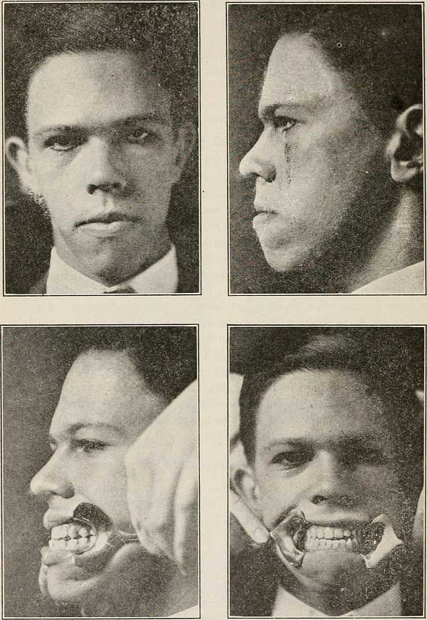 Textbook image showing orthodontic treatment. 1906.