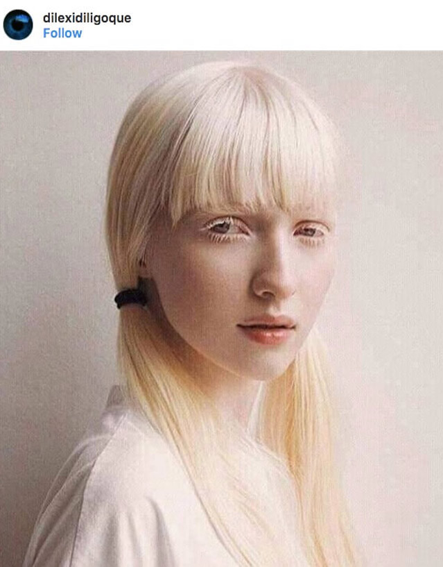 Europe, girl, albino, albinism