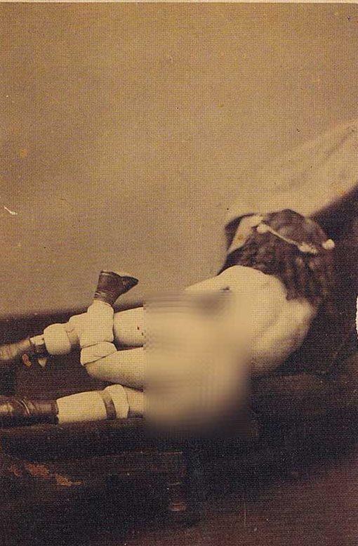 Blanche Dumas, three legged woman, fact, facts