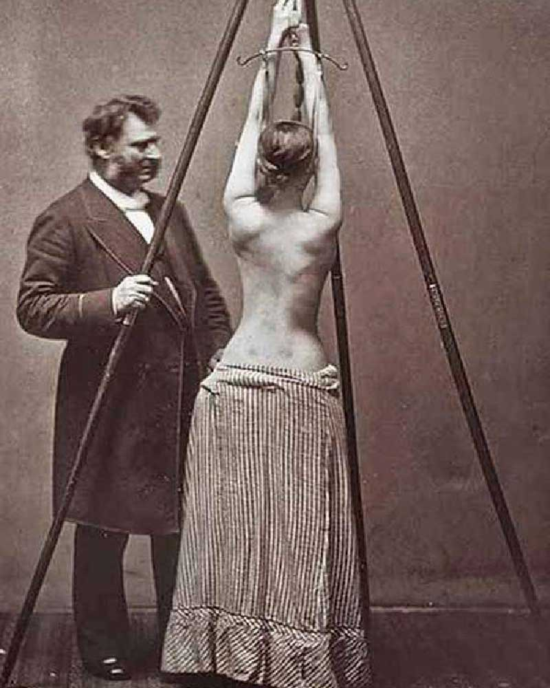 Scoliosis, medical history, fact, facts