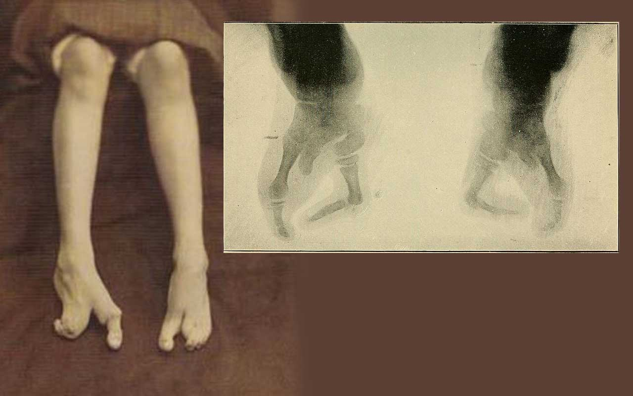 Ectrodactyly foot, birth defect