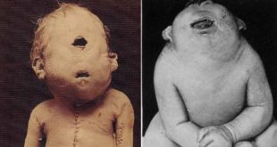 cyclopia, medical conditions, fact, facts, three legged woman, life, scary, fact nation, factinate, unbelievable facts, weird world, weird fact, uber facts, incredible facts, inspirational facts. doctor, doctors,