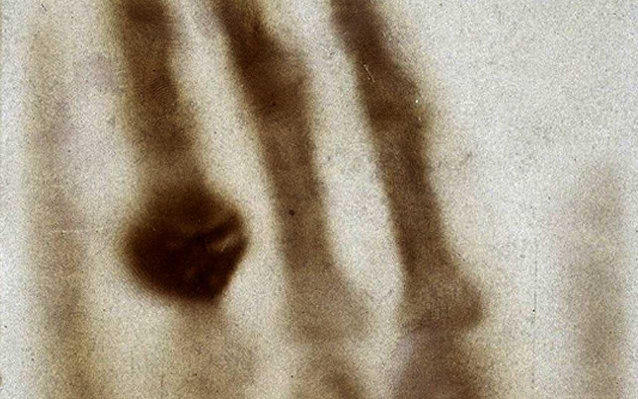 The Hand Of Mrs. Wilhelm Röntgen, 1895