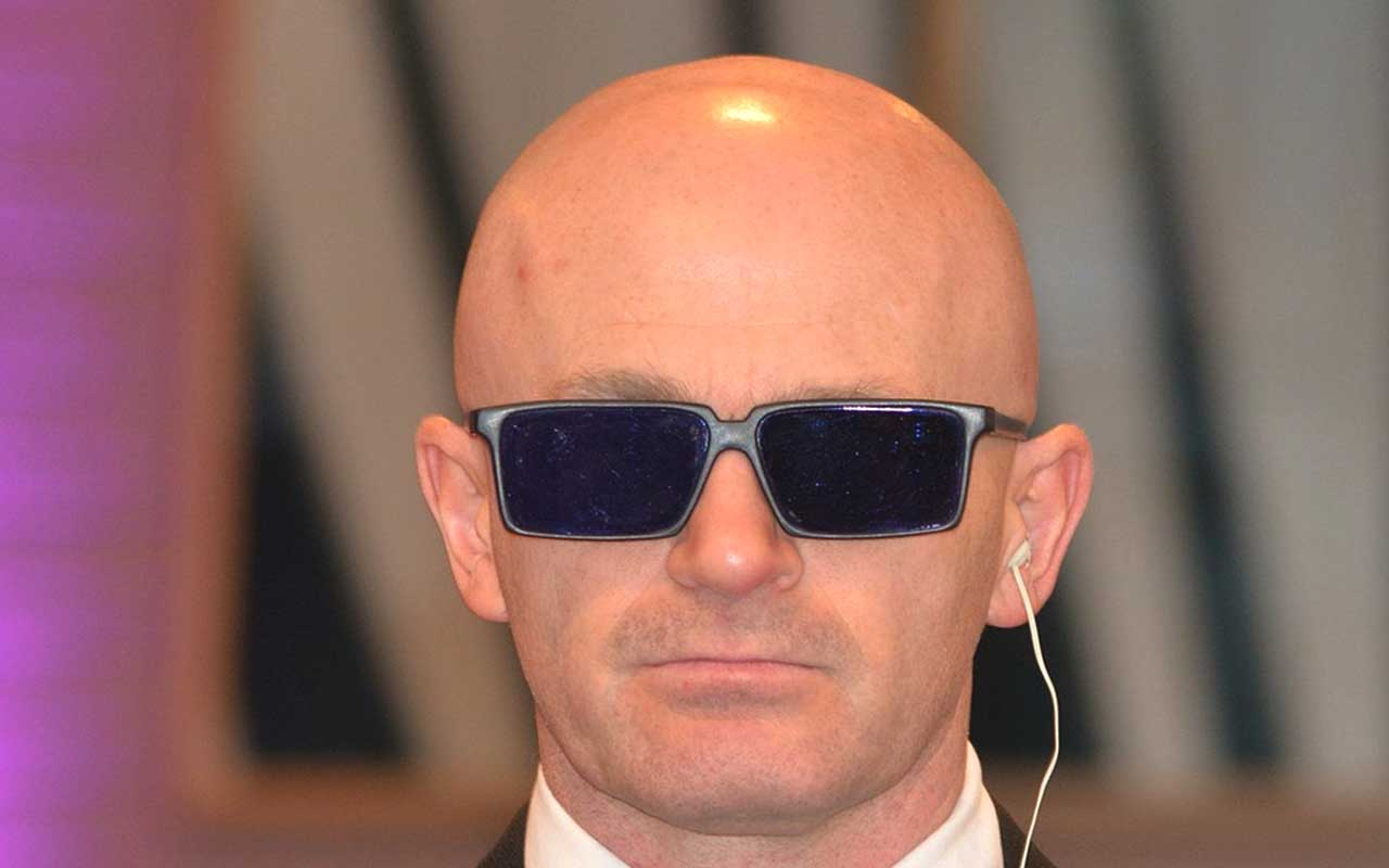 bald, head, shiny, people, man, men, life, facts, scinece
