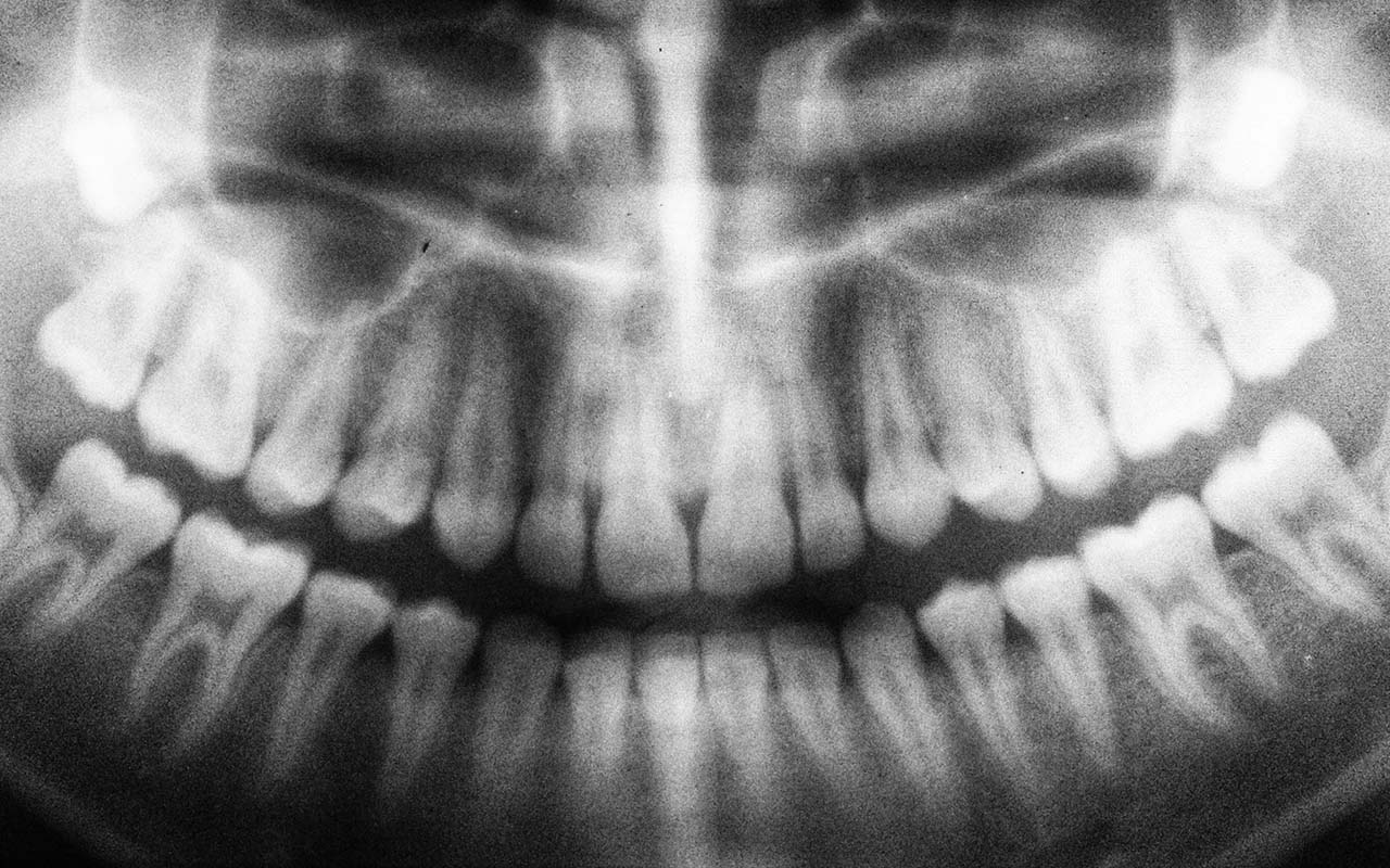 tooth, hidden, facts, oral health, people, weird
